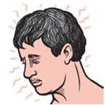 Illustration of a man's head who seems to have a high body temperature