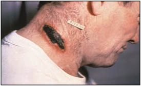 Infection with BA can cause cutaneous anthrax. Lesions, like on this patient's neck, are marked by a typical black eschar.