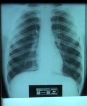 X-ray of healthy lungs