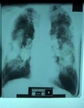 X-ray of silicosis lungs